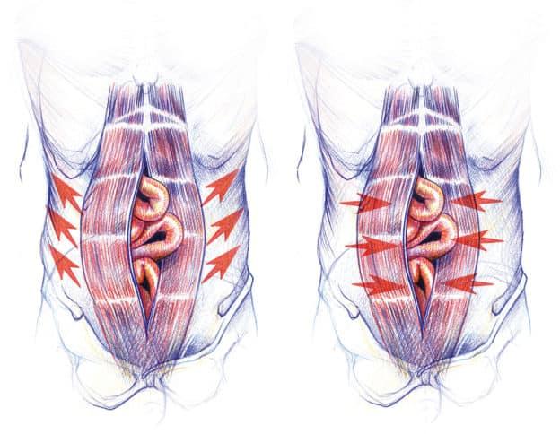 neumoperitoneo y las problematicas de las hernias